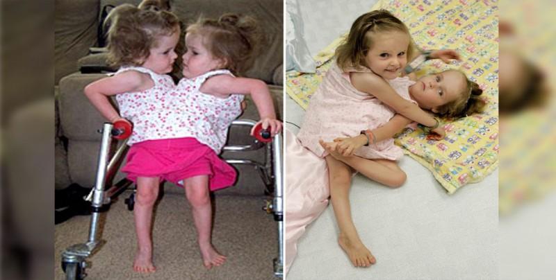 Separan con éxito en EEUU dos gemelas que nacieron unidas por pecho y abdomen