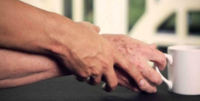 Atiende IMSS a 300 mil derechohabientes con Parkinson