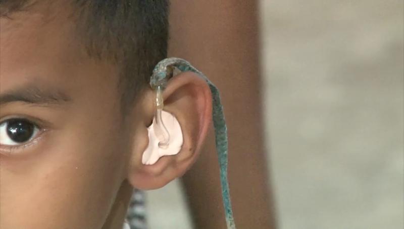 Campaña de aparatos auditivos a bajo costo