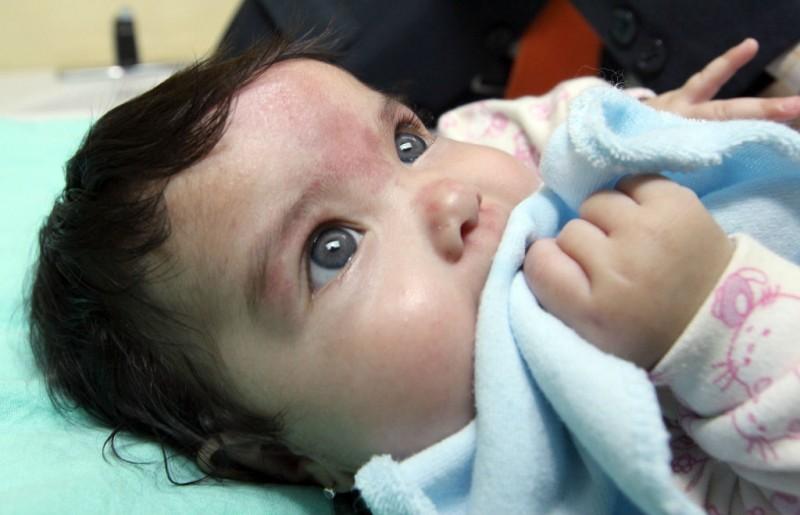 IMSS recomienda evitar remedios caseros en pacientes con varicela