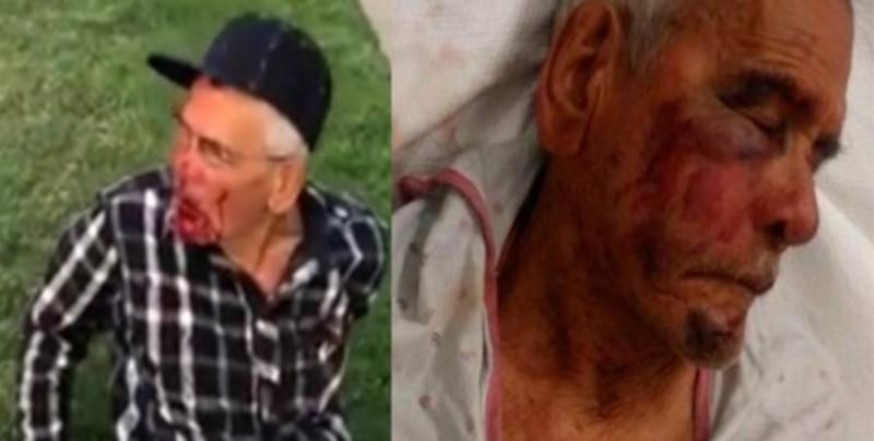 Detienen a sospechosa de golpear a un anciano mexicano con un ladrillo