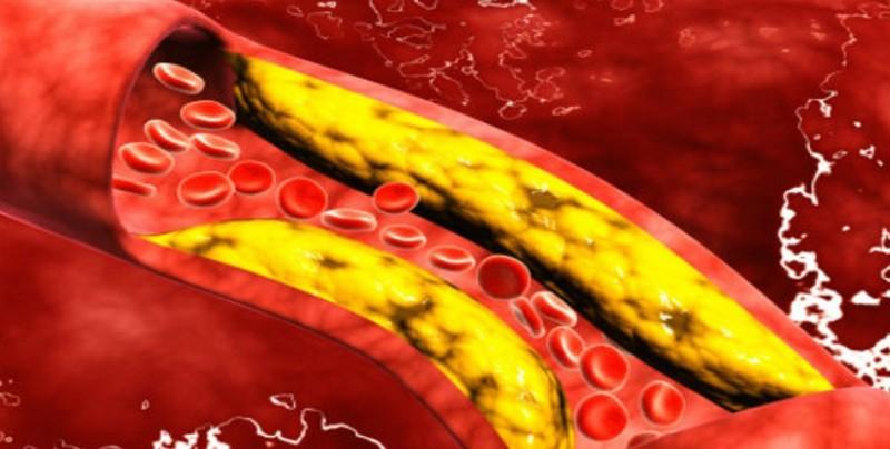 Casi la mitad de adultos en México tienen colesterol alto y no lo saben