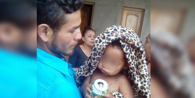 Niño de 2 años aparece vivo en un monte tras 5 días extraviado en Nicaragua