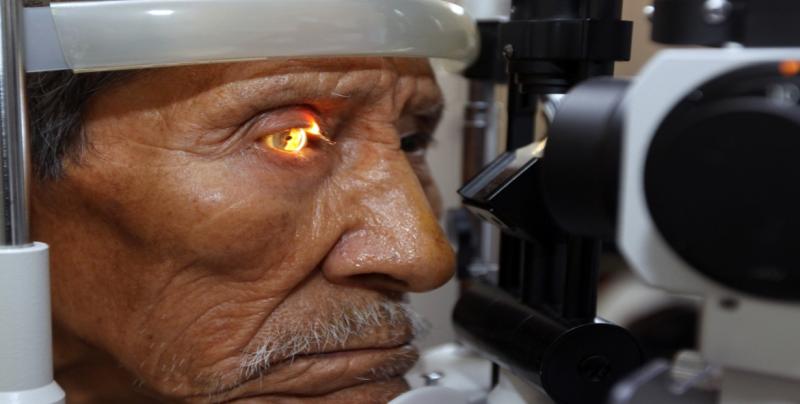 Glaucoma, principal causa de ceguera
