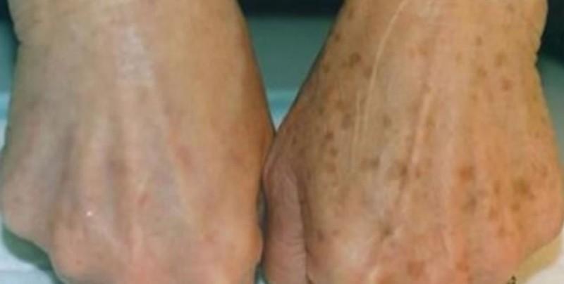 ¿Tienes manchas de edad en tu piel? Así desaparecerán enseguida