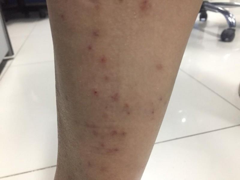 A protegerse del dengue en vacaciones