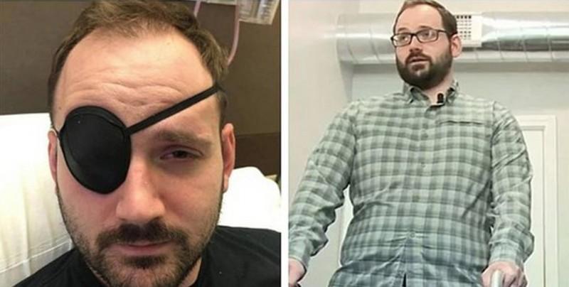 Hombre estira su cuello y termina con derrame cerebral