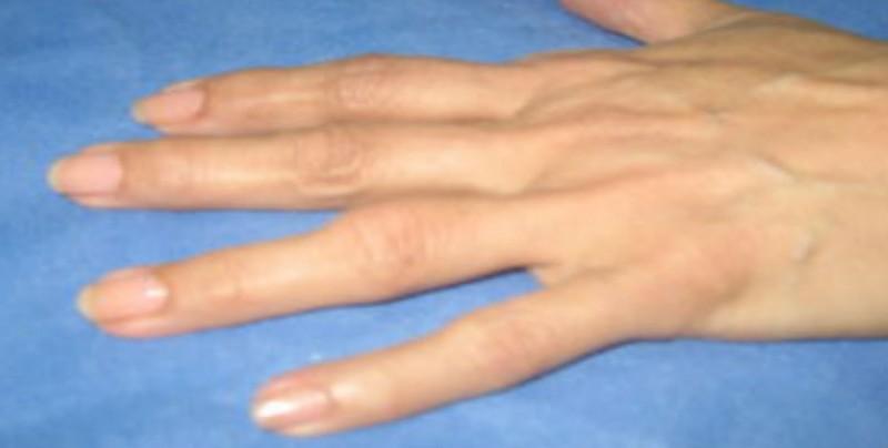 La artrosis puede afectar a cualquier articulación