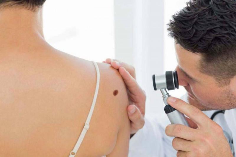 El cáncer de piel tiene alta probabilidad de curación