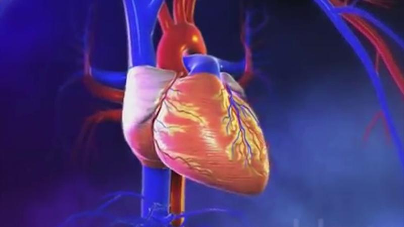 Infartos al corazón principal causa de muerte