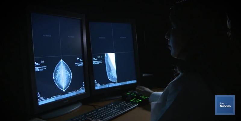 Autoexploración y mastografía es fundamental para detectar cáncer de mama