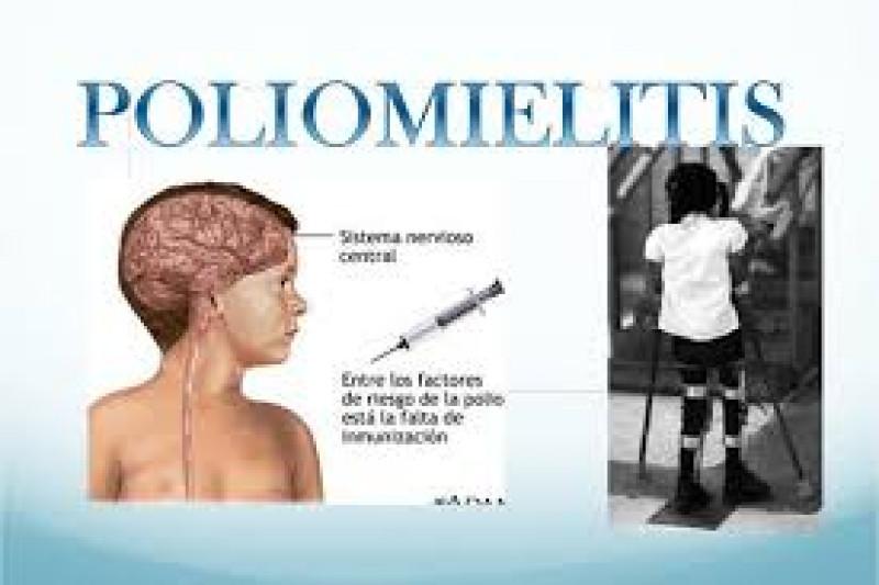 En México no hay casos de poliomielitis