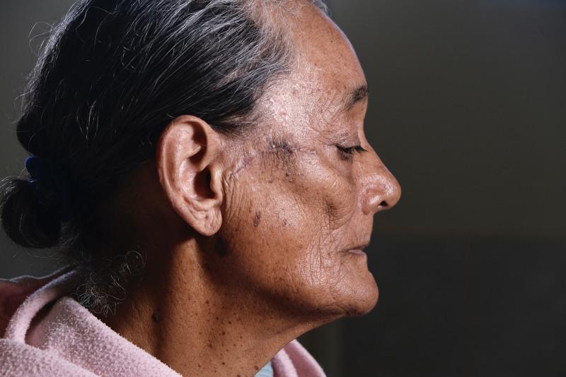 En 23 años, más de 66 mil personas de escasos recursos beneficiadas con Jornadas Quirúrgicas Bienestar