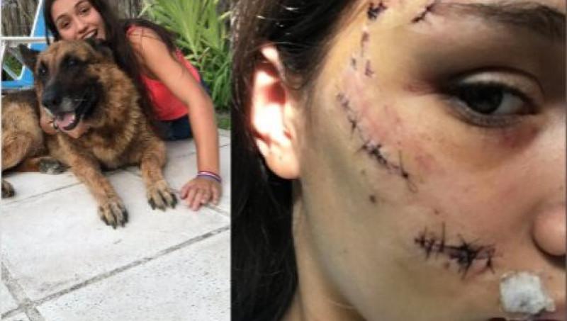 Quería una selfie con su perro y éste ¡la atacó!