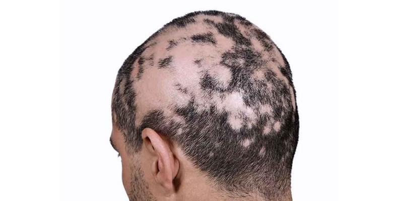 Tratamientos gratuitos para pacientes con alopecia areata