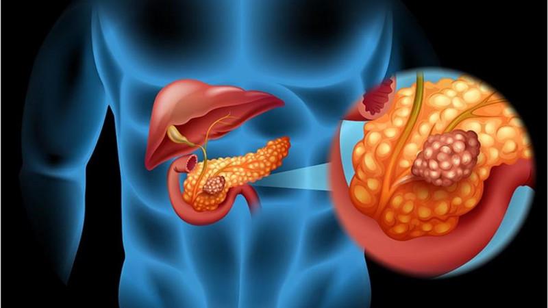 Científicos de EEUU afirman saber como parar el desarrollo del cáncer de páncreas