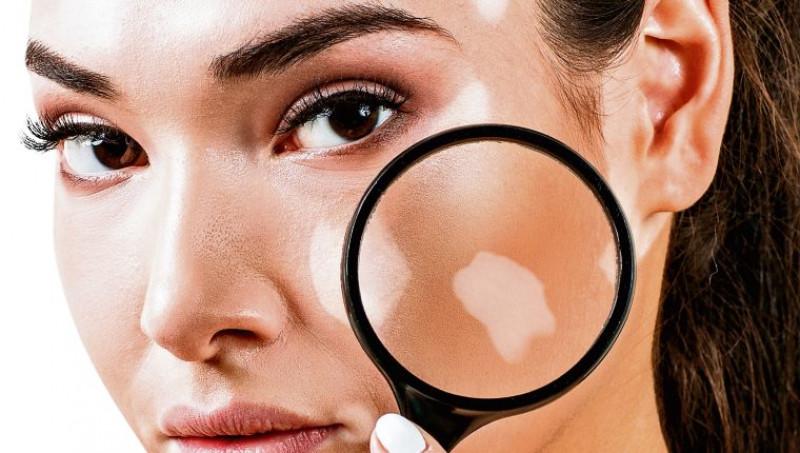 Estrés puede generar problemas de vitiligo