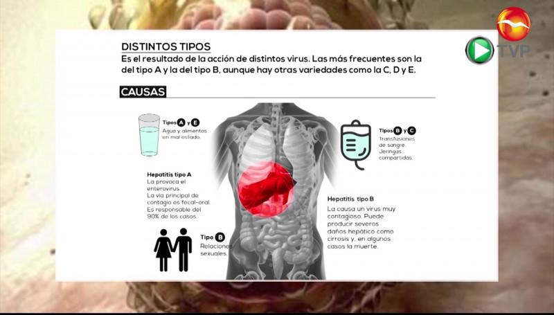 Recomiendan lavarse las manos para prevenir Hepatitis A