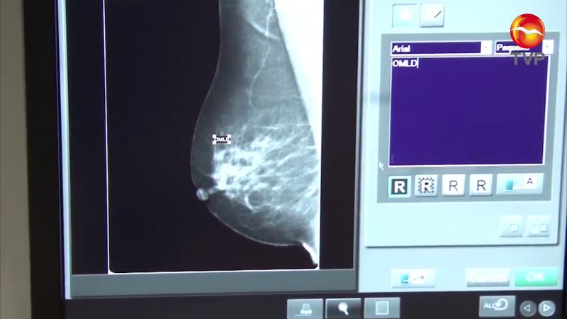 25 casos de cáncer de mama en el sur de Sinaloa