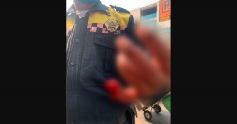 Mujer le arranca de una mordida parte del dedo menique a tránsito para evitar infracción