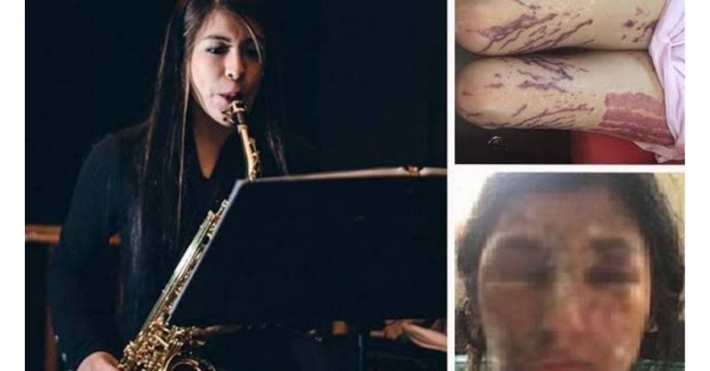 Ordenan arrestar a hijo de exdiputado por ataque con ácido a saxofonista en 2019