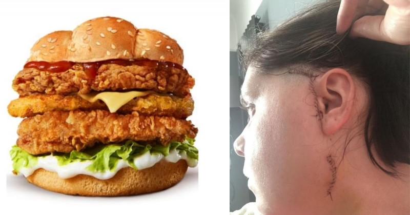 Británica ha sufrido cinco cirugías por tratar de comerse una hamburguesa triple