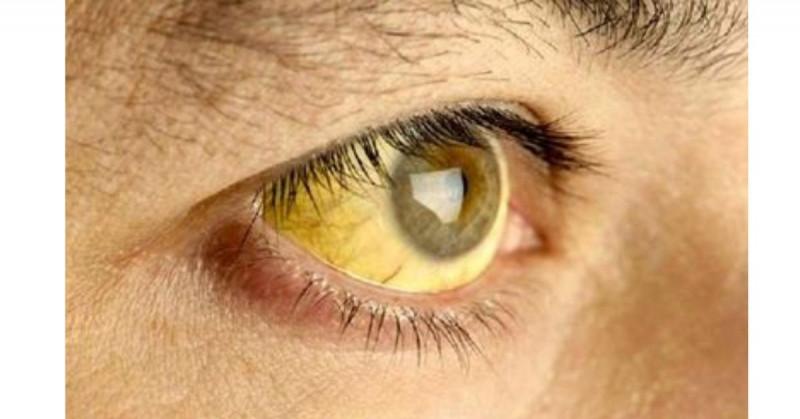 La OMS alerta de un brote de fiebre amarilla en Venezuela